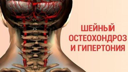 Как победить шейный остеохондроз и гипертонию