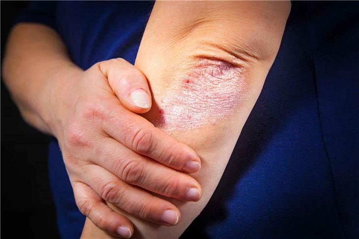 Ученые нашли связь между белками кожи человека и псориазом