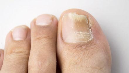 Как избавиться от грибка ногтей