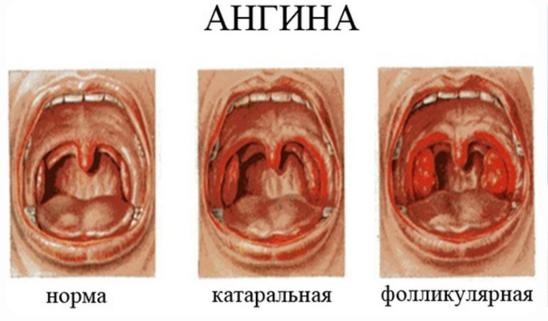 ангина симптомы