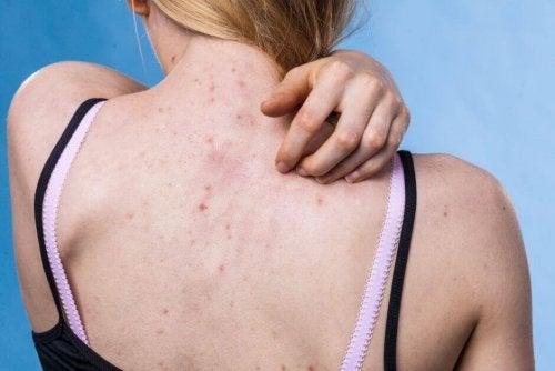 Кожные заболевания на спине