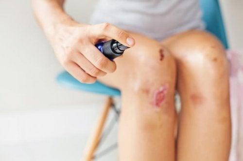 Рана колена