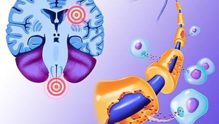 Как жить с рассеянным склерозом: 7 советов